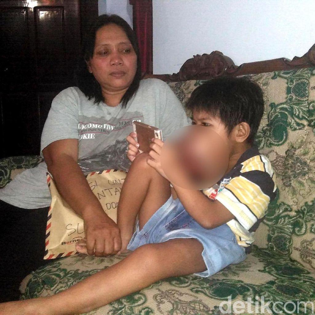 Derita Bintang, Bocah 7 Tahun Idap Tumor di Gusi