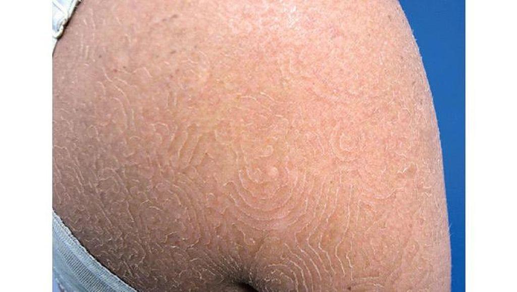 Kena Infeksi Fungi Tak Biasa, Ruam Berpola Muncul di Tubuh Wanita Ini