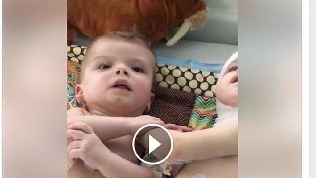 Momen Haru Saat Kembar Dempet Kepala Bisa Saling Pandang Ini Jadi Viral