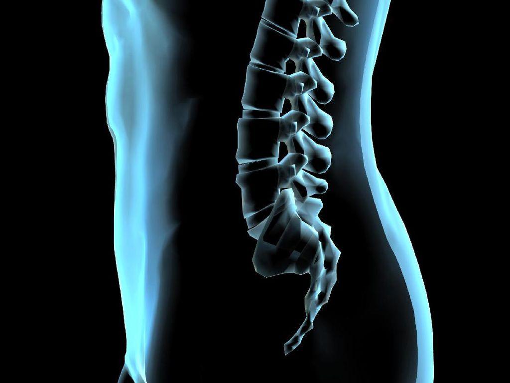 Deretan Seleb Internasional yang Punya Masalah Tulang Belakang