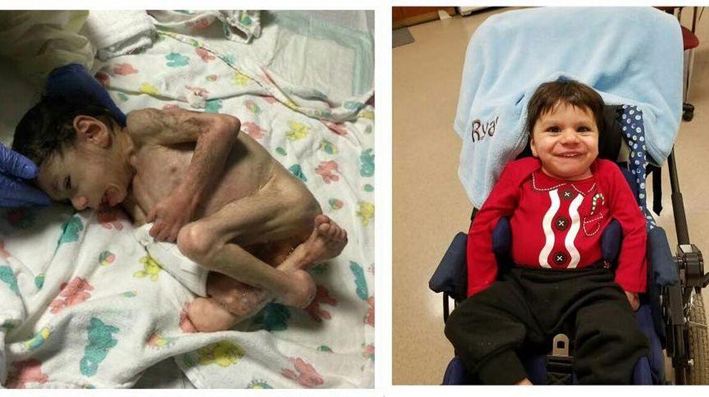 Kisah Bayi Malnutrisi yang Kini Lucu dan Menggemaskan Setelah Diadopsi