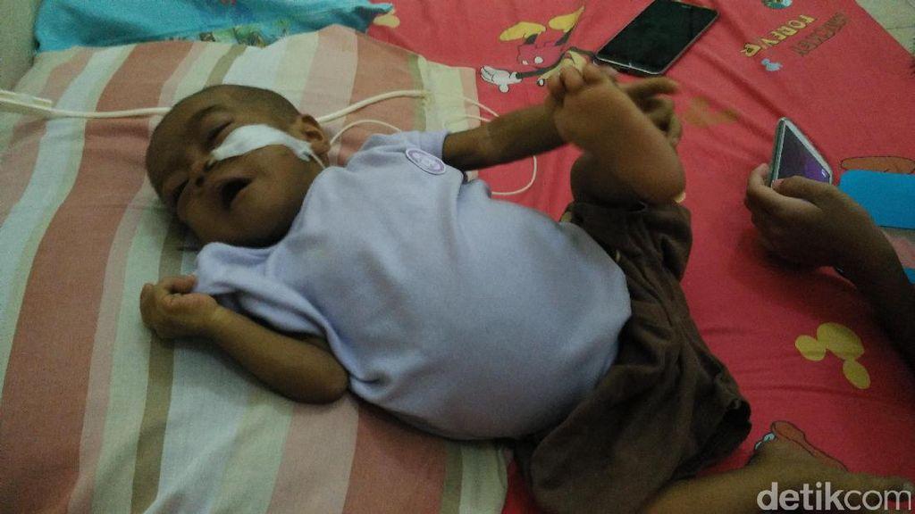Alami Atresia Bilier dan Butuh Transplantasi Hati, Bayi Naura Butuh Bantuan