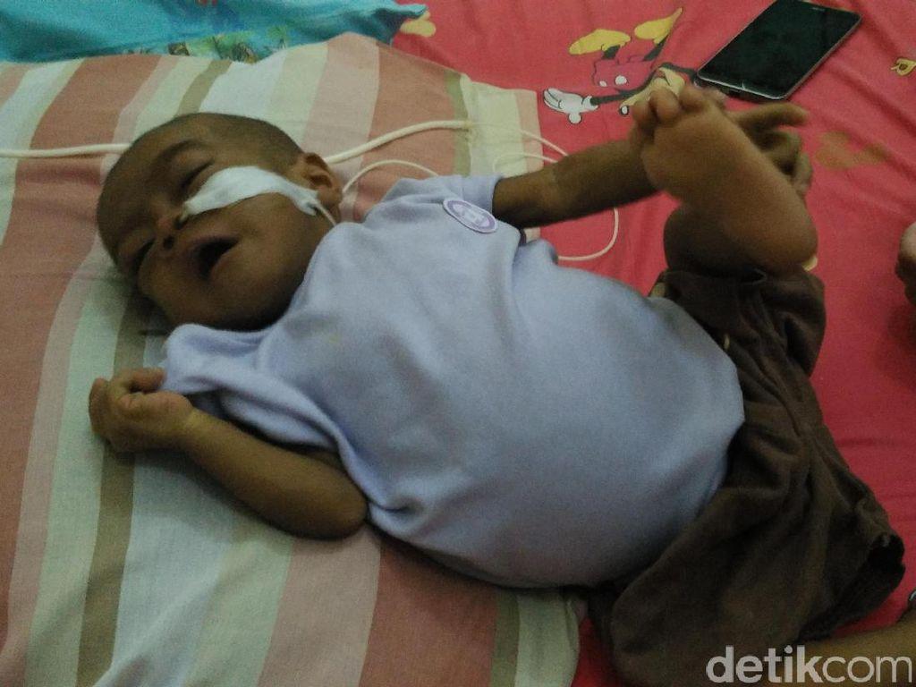 Bayi Ini Butuh Bantuan untuk Jalani Transplantasi Hati