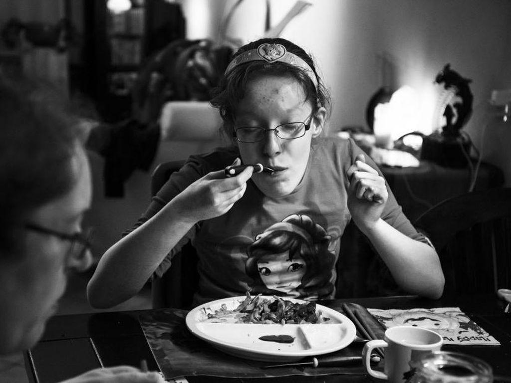 Kisah Gadis yang Selalu Merasa Lapar karena Idap Kondisi Langka