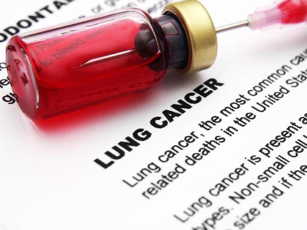 Berapa Lama Harapan Hidup Pasien Kanker Paru Stadium 4?