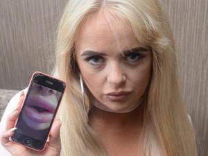 Lakukan Filler Murah, Bibir Wanita Ini Jadi Bengkak Seperti Sosis Mentah