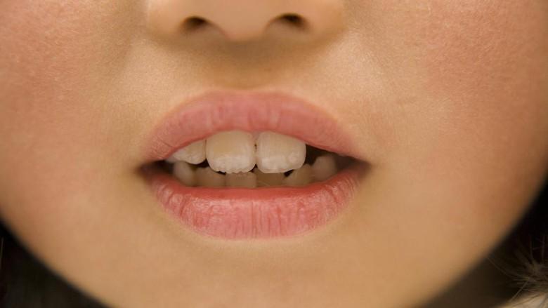 Cara Jitu Mengajari Anak Merawat Kesehatan Gigi dan Mulut/ Foto: ilustrasi/thinkstock