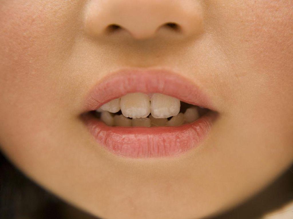 Nggak Cuma Kita, Anak-anak Juga Bisa Mengalami Gigi Sensitif