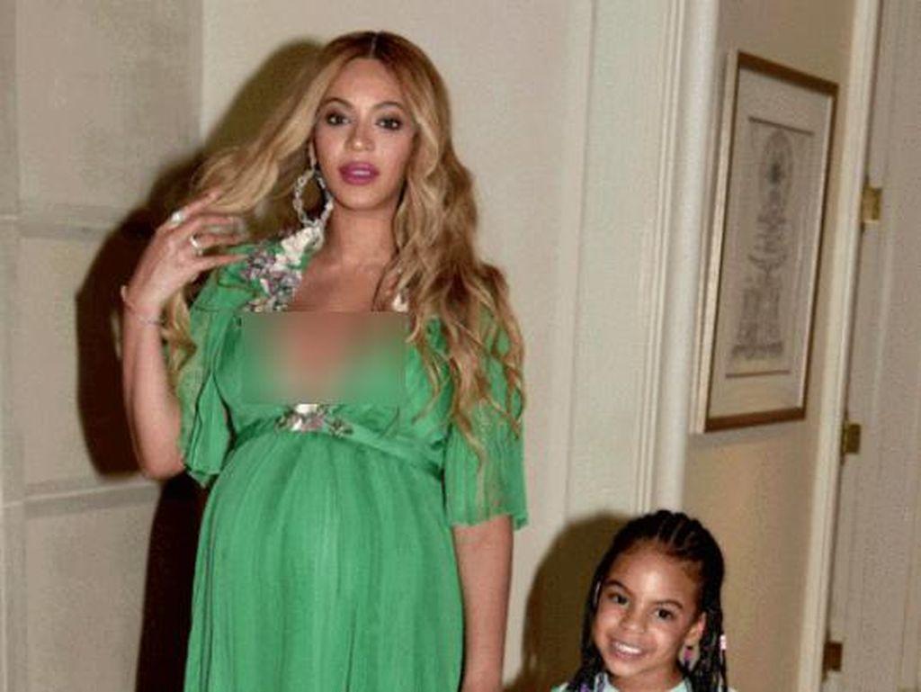 Beyonce & Lupita Nyongo Pakai Gaun Gucci Rp 232 Juta, Siapa Favoritmu?