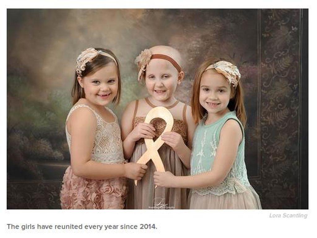 Cute! Potret 3 Survivor Kanker Anak Selama 4 Tahun Berturut-turut