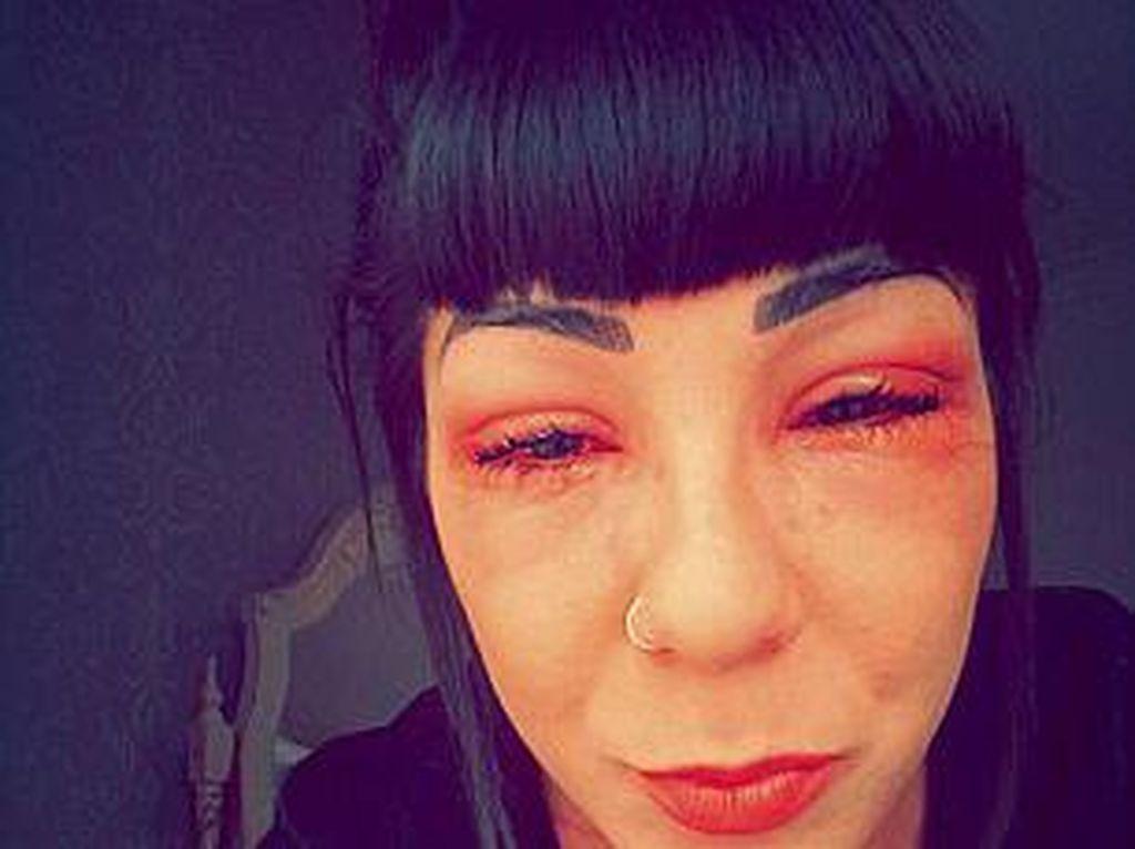 Terapi Bulu Mata Agar Lentik, Mata Wanita Ini Justru Bengkak dan Berair