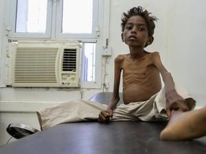 PBB: Dunia Sedang Hadapi Krisis Kemanusiaan Terbesar Sejak 1945