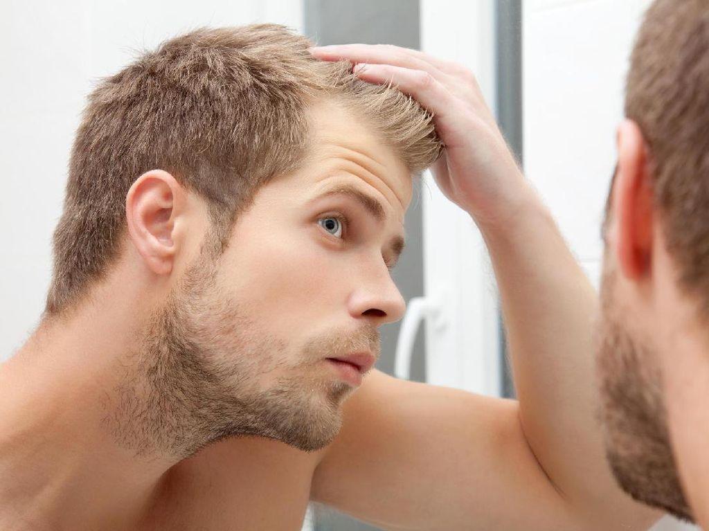 Perhatikan, Ini Penyebab Rambut Rontok yang Jarang Diketahui