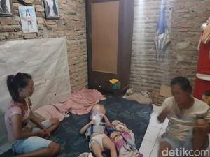 Ilham Bocah Penderita Hidrosefalus di Serang Butuh Bantuan