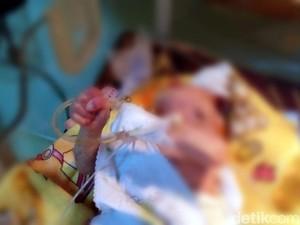 Bayi Berusia 3 Minggu di Sukabumi Ini Lahir Tanpa Tempurung Kepala