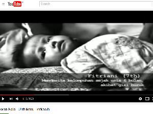 Bocah Gizi Buruk Asal Pandeglang yang Dulu Ada di Video Iwan Fals