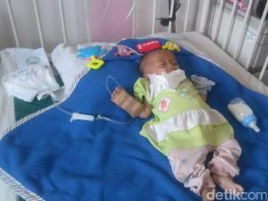 Srikandi, Bayi Gizi Buruk di Bandung Terlahir dari Ibu Gangguan Jiwa