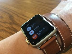 Studi: Apple Watch Bisa Deteksi Penyakit Jantung