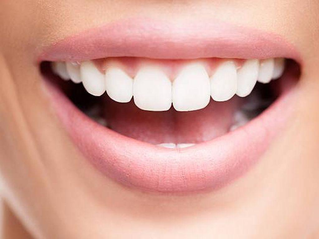 Bibir Kering Saat Puasa? Berikut Tips untuk Mengatasinya