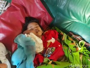 Nestapa Almira, Bocah Pangalengan Bandung Pengidap Tumor
