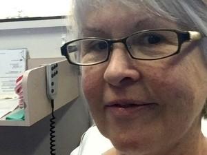 Pasien Kanker Payudara Australia Uji Coba Kemoterapi Singkat 9 Menit