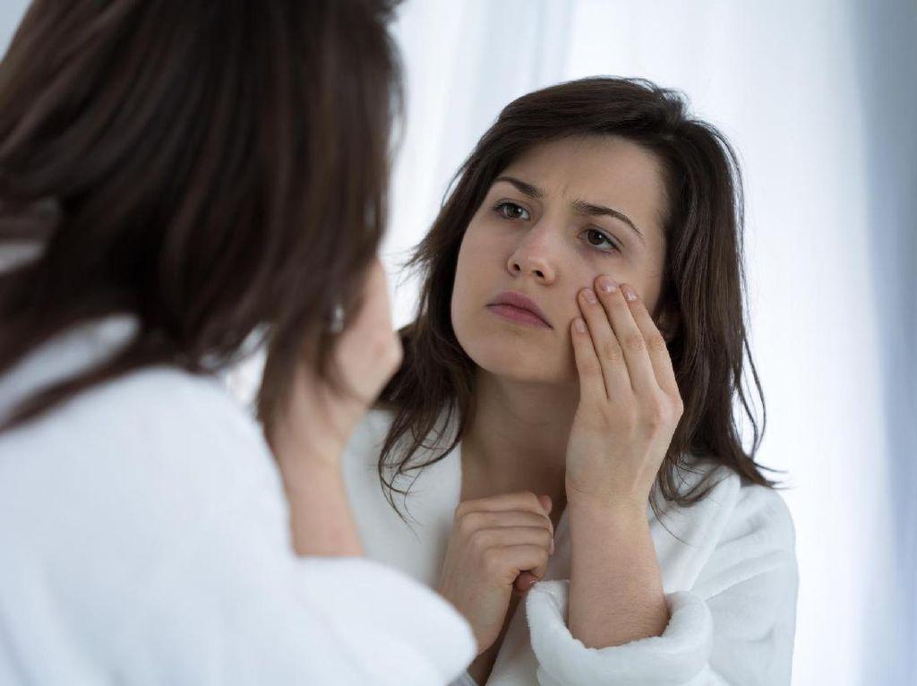 5 Masalah Kesehatan yang Terpancarkan Lewat Wajah