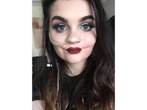 Kisah Inspiratif Makeup Artist Pengidap Sindrom Langka