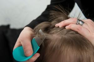 Manfaatkan 8 Bahan di Dapur Ini untuk Hilangkan Kutu Rambut (2)
