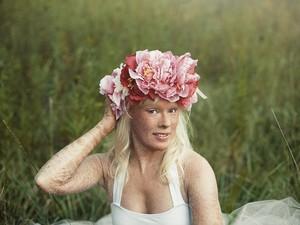 Inspiratif, Wanita dengan Tubuh Bersisik Terpilih Jadi Ratu Kecantikan