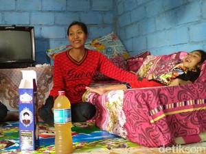 Perjuangan Hidup Bocah dari Gunungkidul yang Lumpuh Akibat Torch CMV