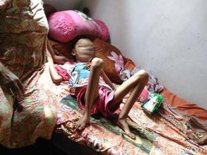 Akbar yang Sakit Leukemia Harus Bolak-balik Berobat ke RS Malang
