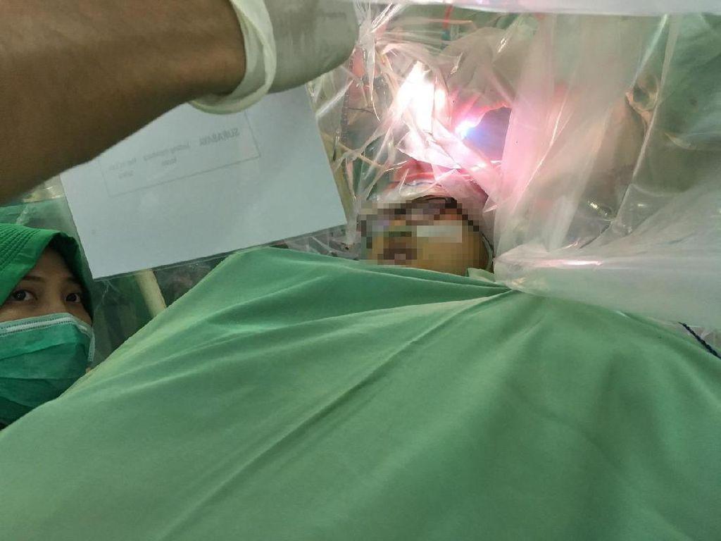 Begini Tantangan Tim Dokter Surabaya Saat Utak-Atik Pasien Tumor Otak