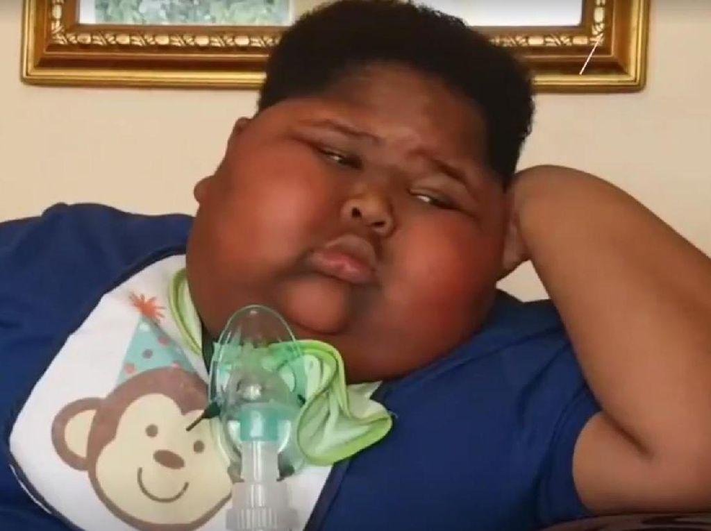 Idap Kelainan Langka, Bocah Ini Tak Bisa Berhenti Makan