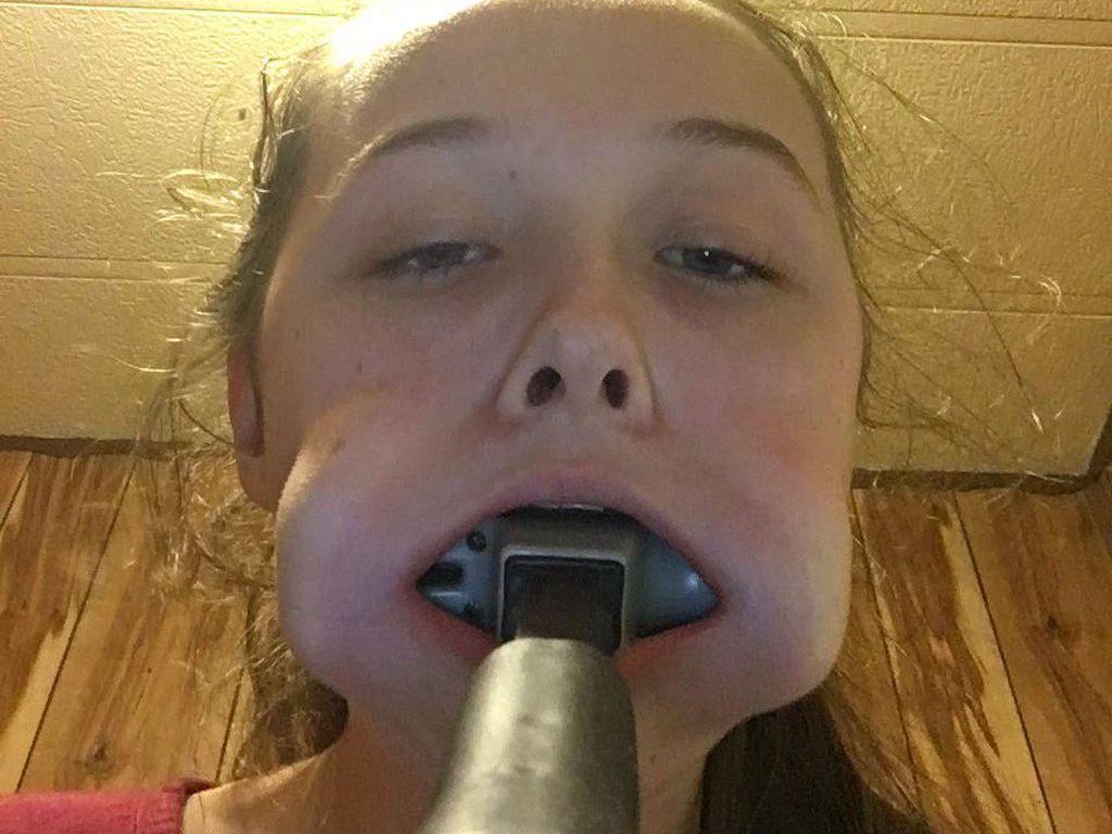 Iseng Banget! Remaja Ini Masukkan Martil ke Mulut, Lalu Nyangkut