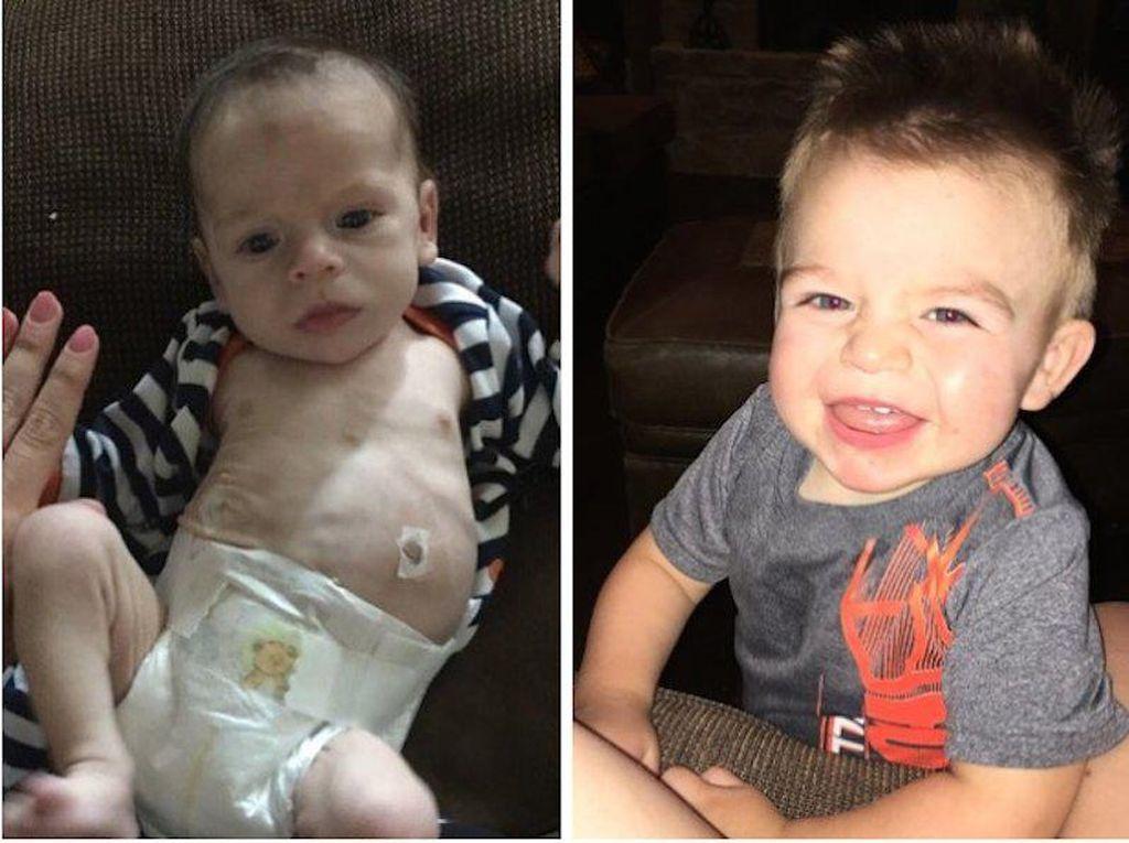 Perjuangan Bayi Baru Lahir yang Sudah Terpengaruh Narkoba