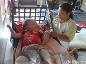 Pasca Operasi, Pengidap Hydrocephalus Ini Butuh Bantuan
