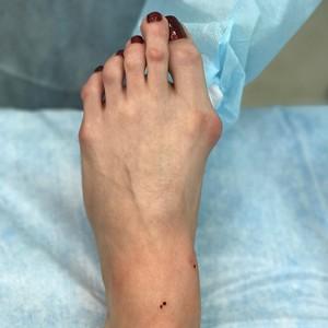 Ouch!! Foto-foto Ini Buktikan High Heels Tidak Baik untuk Kesehatan Kaki