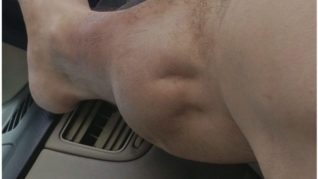 Ngeri!! Otot Kaki Pria Ini Kram Seperti Kemasukan Mahluk Hidup