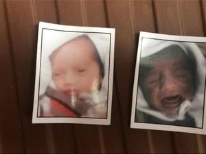 Mengapa 100 Bayi Meninggal Dunia di Rumah Sakit India?