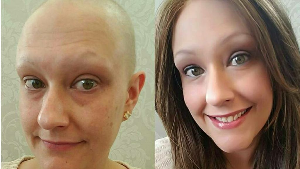Transformasi Para Penyintas Kanker, Dari Botak dan Pucat Kembali Cantik