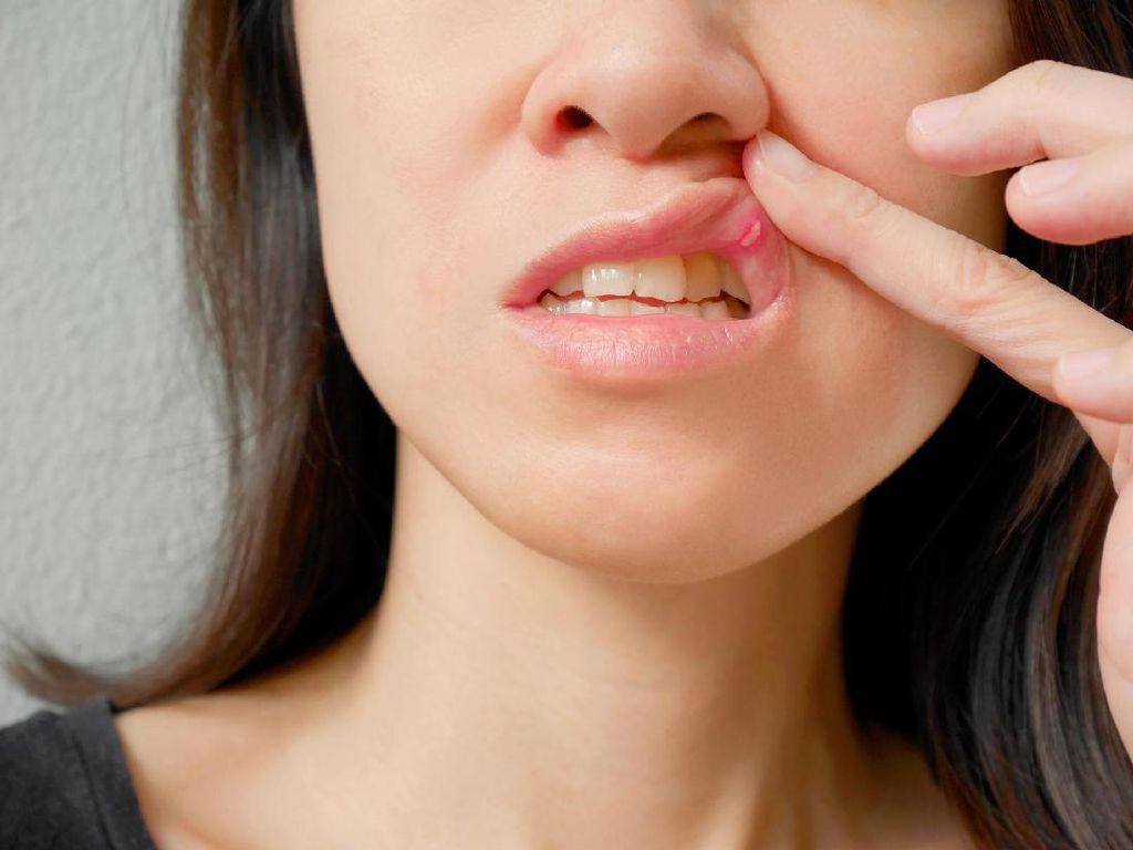 Gejala Awal Kanker Mulut yang Perlu Bunda Tahu
