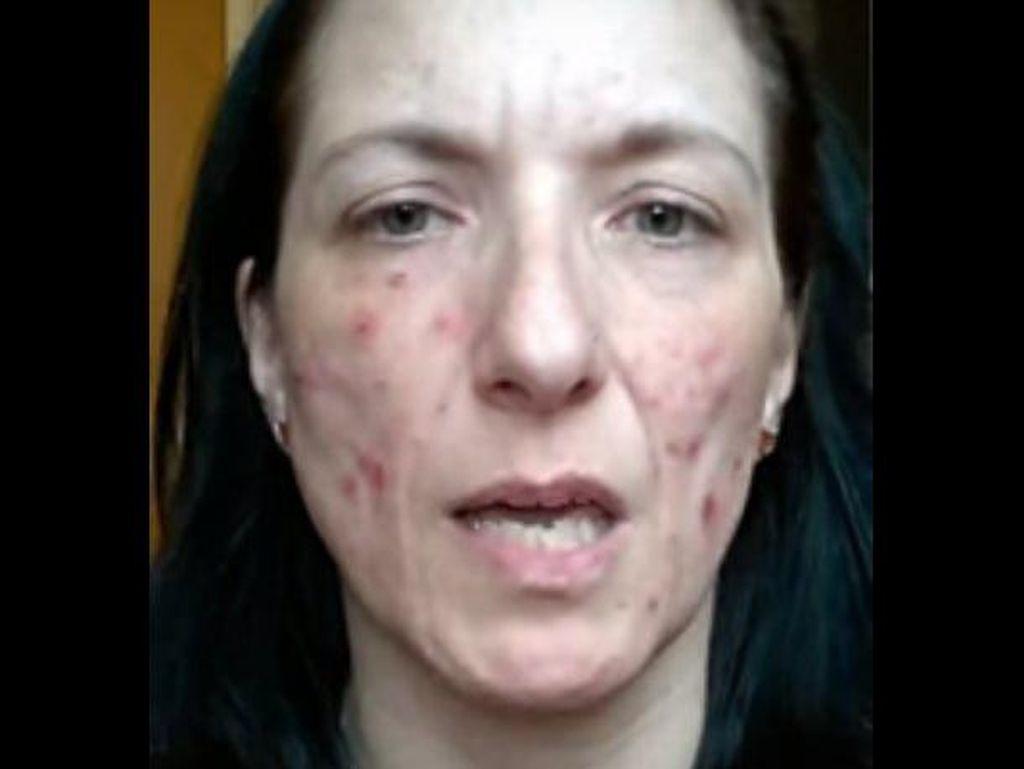 Idap Dermatillomania, Wanita Ini Selalu Ingin Menguliti Kulitnya