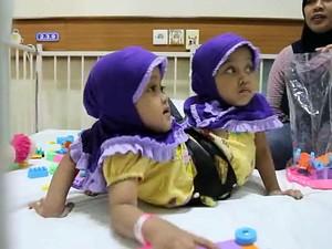 Kaki Tambahan Balita Kembar Siam Asal Garut Berhasil Dihilangkan