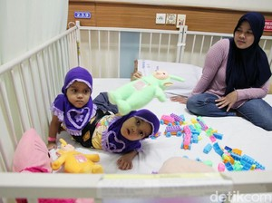 RSHS Segera Operasi Kaki Tambahan Balita Kembar Siam Asal Garut