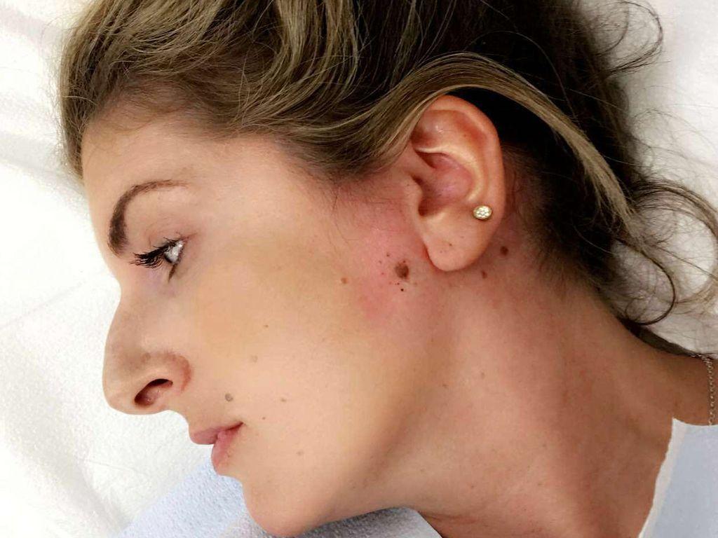 Dikira Komedo, Dagu Wanita Ini Ternyata Ditumbuhi Kanker