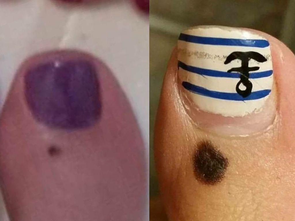 Contoh Foto-foto Tahi Lalat yang Patut Dicurigai Kanker Kulit