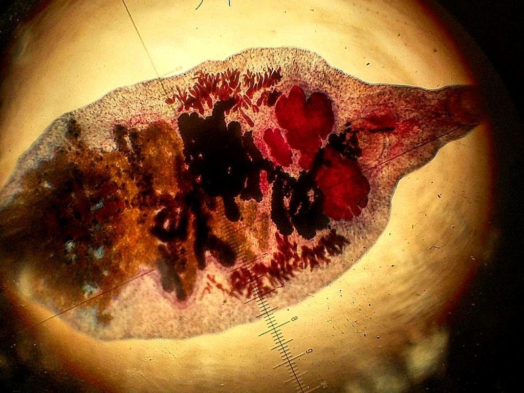 Para Veteran Perang Vietnam Terancam Parasit Penyebab Kanker Hati