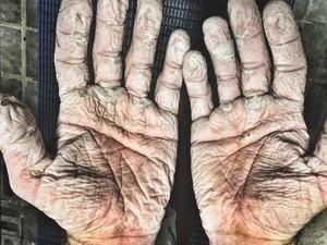Tebak Tangan Ini Milik Siapa! yang Jelas Bukan Tangan Lansia