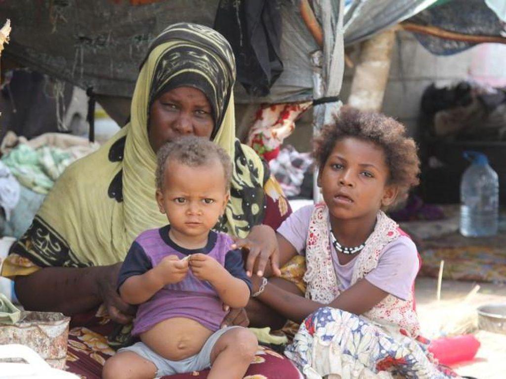 Mengintip Wabah Kolera di Yaman yang Disebut Wabah Terburuk di Dunia