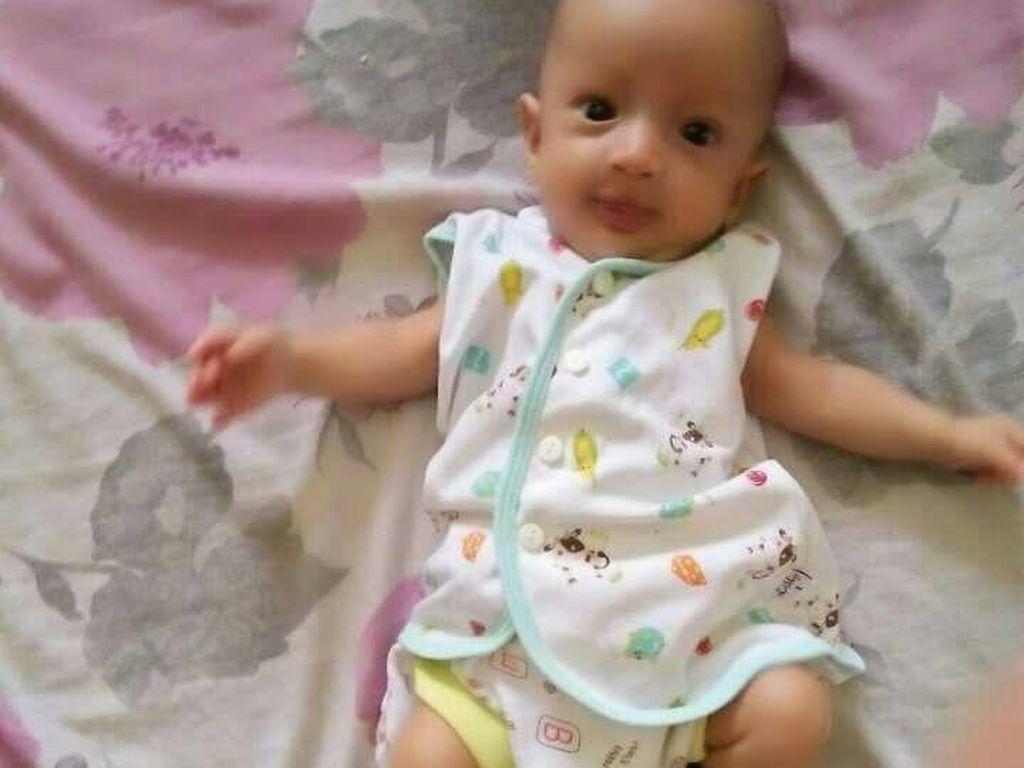 Foto: Kenangan Bayi Debora yang Meninggal karena Kurang Uang Muka